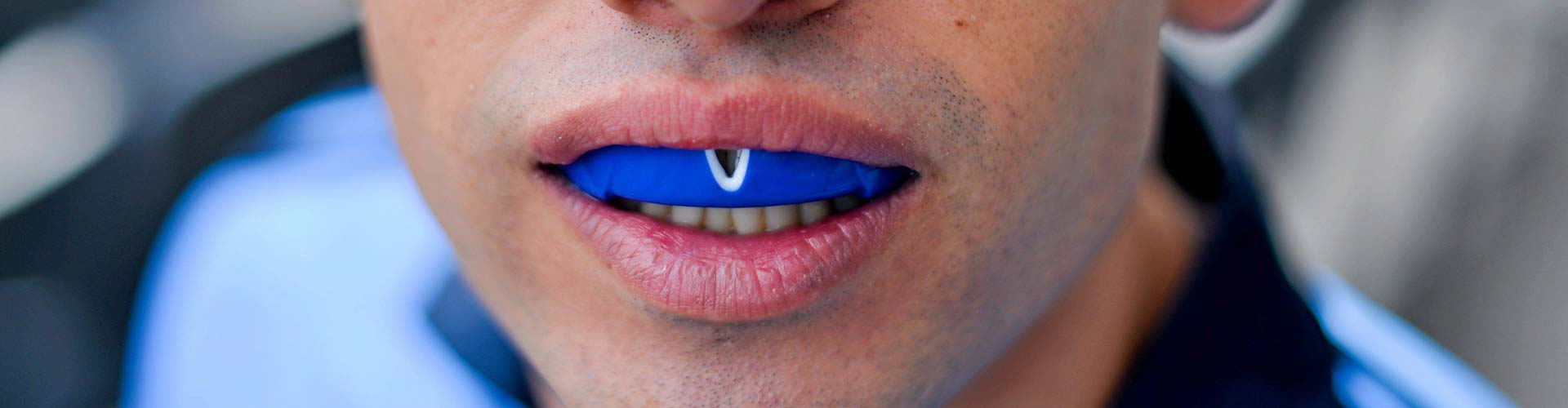 jfd_mouthguards.jpg